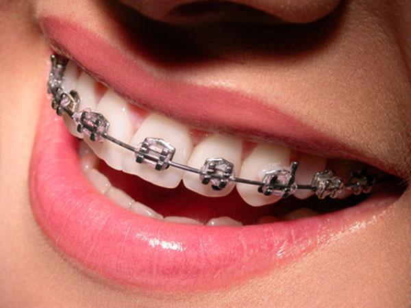 Ortodonzia - Apparecchio per i Denti