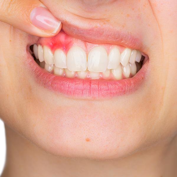 Parodontologia-infiammazione-gengive