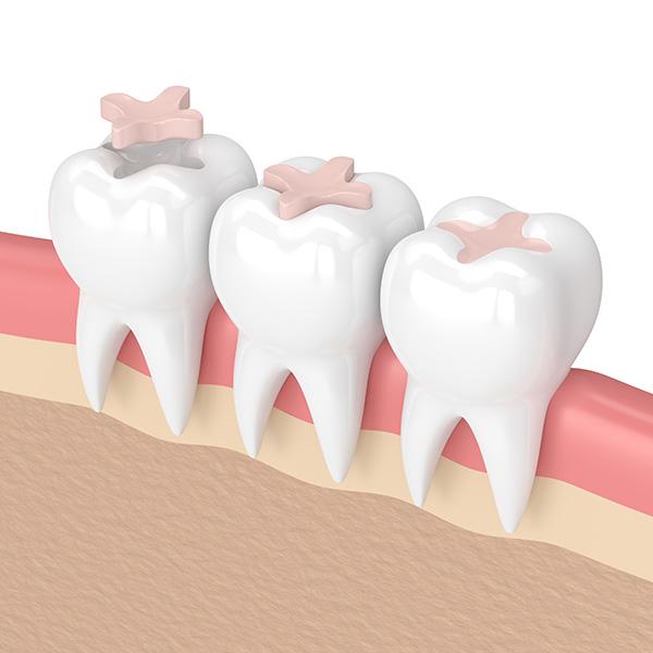 intarsi-dentali